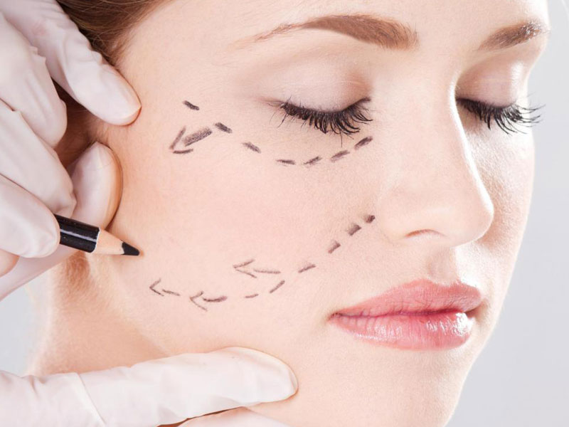Lipoescultura Facial en Madrid