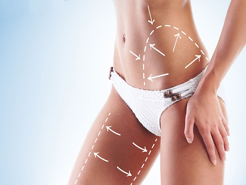 liposuction en Madrid